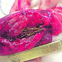 5 cm. fir tree removed from patient's lung
